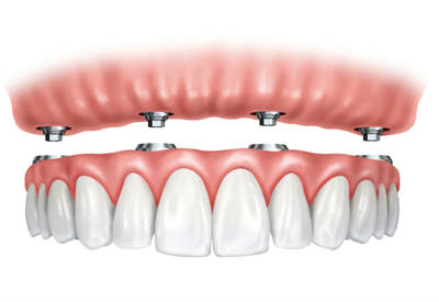 Ball-Retained Dentures in Oakley, CA