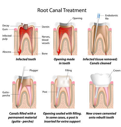 Root Canal Treatment in Oakley, CA