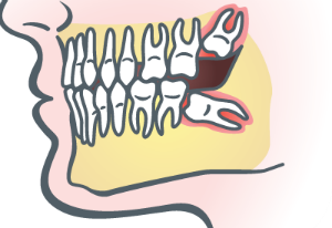 Wisdom Teeth Extraction in Oakley, CA